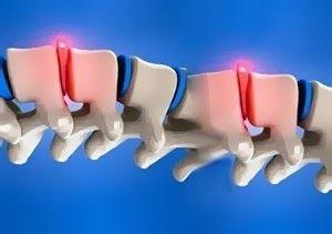 13-bulging-vertebral-disc